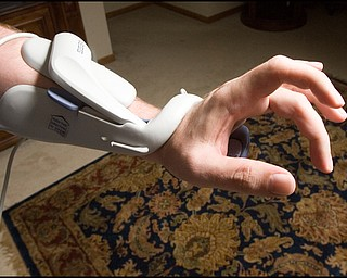 7.24.2008 Dr. Richard Esper and Bioness H200, a hand orthotic, which electrically stimulates fingers to open and close a separate box attached by a cord controls the time of opening and closing intervals. Esper has had the device, which insurance would not cover, for 4 months and he uses it 2-3 hours a day 4-5 days a week in an effort to reestablish pathways between the brain and the hand.