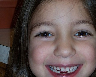 This gap-tooth-grin belongs to ALYSSA LESKOVAC, 5. She is the daughter of Tom and Amy Leskovac of Austintown.