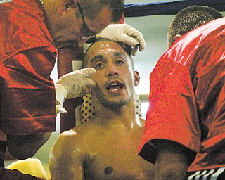 Trainers attend to boxer Jake Giuriceo between rounds of his win against James Hope. The Campbell boxer's career is on hold after undergoing surgery to repair a detached retina in right eye, which he injured during his Dec. 1 bout with Kenyan boxer Peter Olouch.