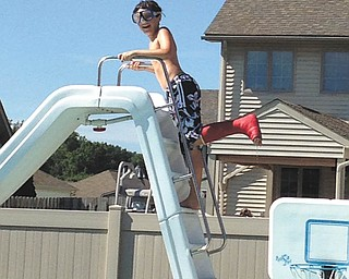 Because of new waterproof casts, summer wasn't ruined for Jacob Buttar of Niles!