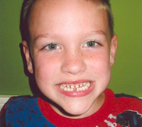 JACKSON KEMATS shares his toothless grin with the camera. He is the son of Jamie and Dan Kemats of Columbiana. His mom says that he mistook his missing tooth for a piece of apple and swallowed it! The good news is, they left a note for the Tooth 