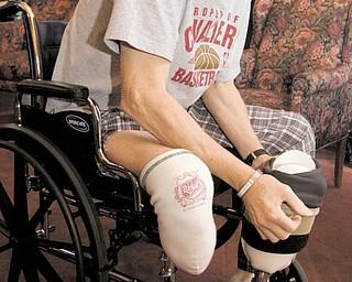 Joseph Zajac shows his prosthesis at Greenbriar Healthcare Center.