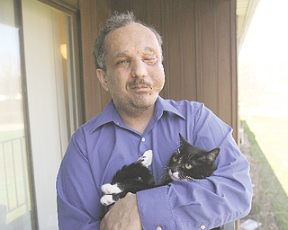 Austintown resident Ed Port, 41, poses with his cat, Spike, on the balcony of his apartment. Earlier this month, Port, who suffers from neurofibromatosis, underwent a third surgery to remove large tumors that covered much of his face.