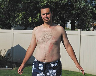 David Buttar of Niles showing his scrapes with pride after trying to keep up with his son, Jacob.